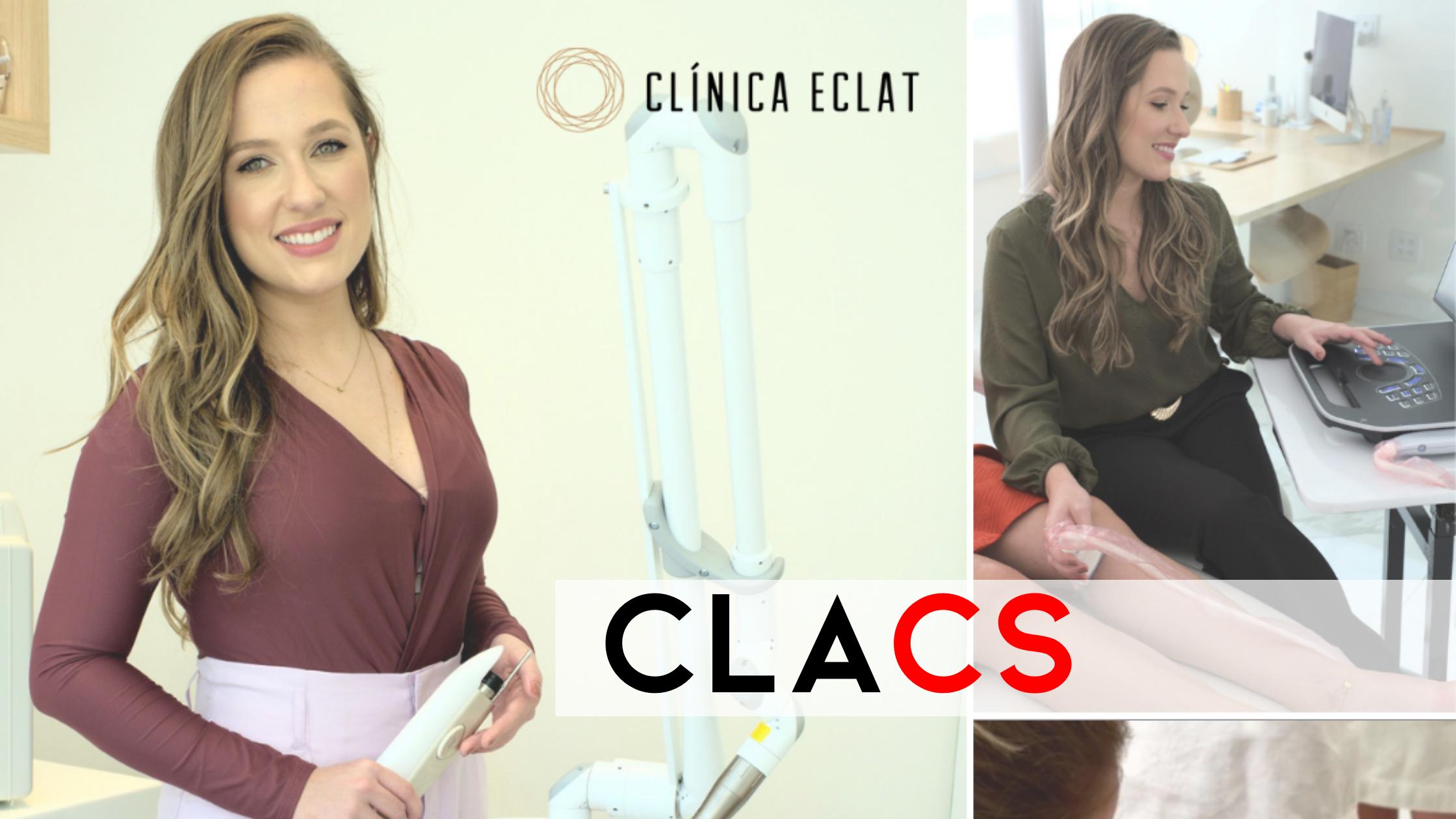 CLACS: Tratamento de varizes sem cirurgia
